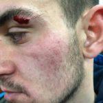 Antrenorul Paul Ciucă acuzat că ar fi lovit cu pumnul un jucător la un meci de fotbal disputat astăzi la Daia Română